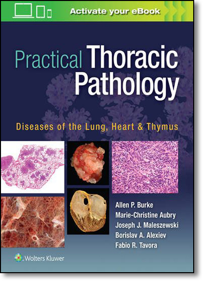 Practical Thoracic Pathology: Diseases of the Lung, Heart, and Thymus, livro de Marie-Christine Aubry