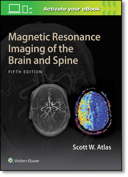Magnetic Resonance Imaging of the Brain and Spine, livro de Scott W. Atlas