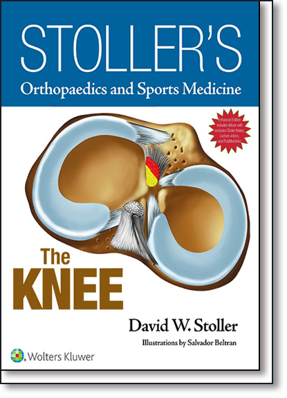 Stoller s Orthopaedics and Sports Medicine: The Knee Package - Print Edition Packaged With Stoller Lecture Videos and, livro de David W. Stoller