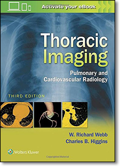 Thoracic Imaging: Pulmonary and Cardiovascular Radiology, livro de W. R. Webb