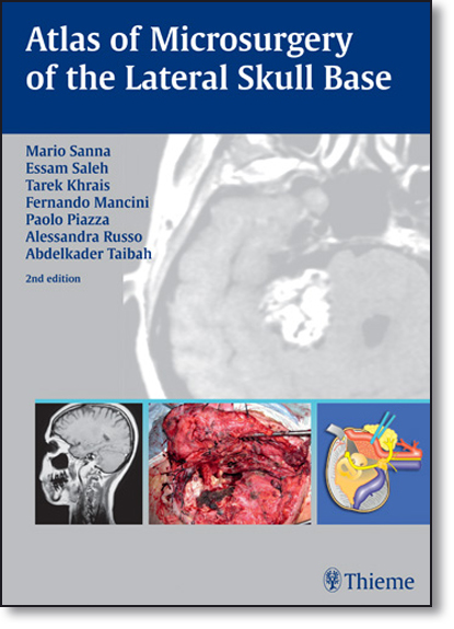 Atlas of Microsurgery of the Lateral Skull Base, livro de Mario Sanna
