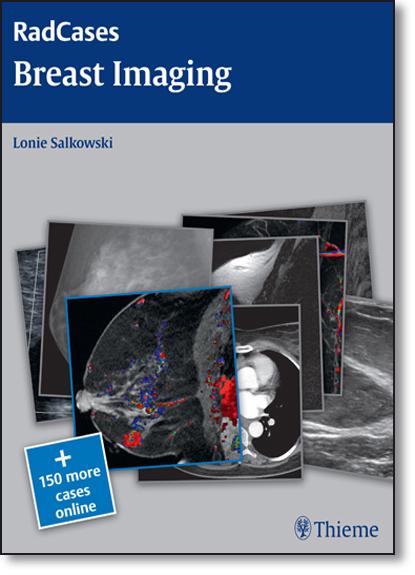 Breast Imaging, livro de Lonie Salkowski
