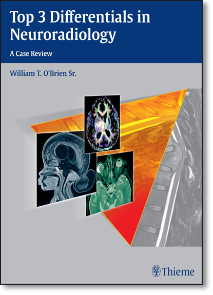 Top 3 Differentials in Neuroradiology: A Case Review, livro de William O Brien