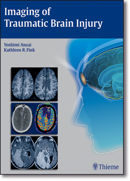Imaging of Traumatic Brain Injury, livro de Yoshimi Anzai