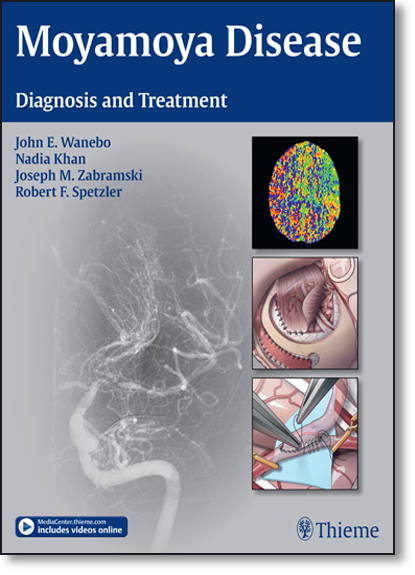 Moyamoya Disease: Diagnosis and Treatment, livro de John E. Wanebo