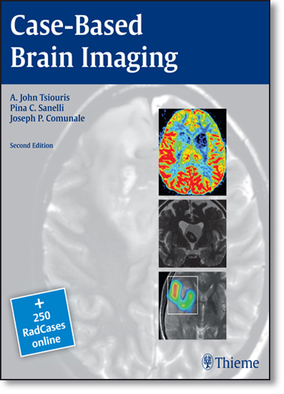Case-based Brain Imaging, livro de A. John Tsiouris