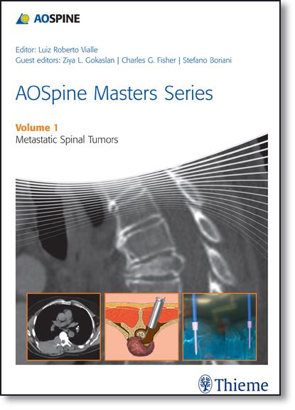 Aospine Masters Series: Metastatic Spinal Tumors - Vol.1, livro de Luiz Roberto Vialle