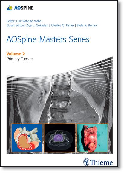 Aospine Masters Series: Primary Spinal Tumors - Vol.2, livro de Luiz Roberto Vialle