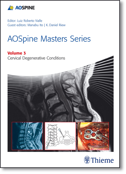 Aospine Masters Series: Cervical Degenerative Conditions - Vol.3, livro de Luiz Roberto Vialle