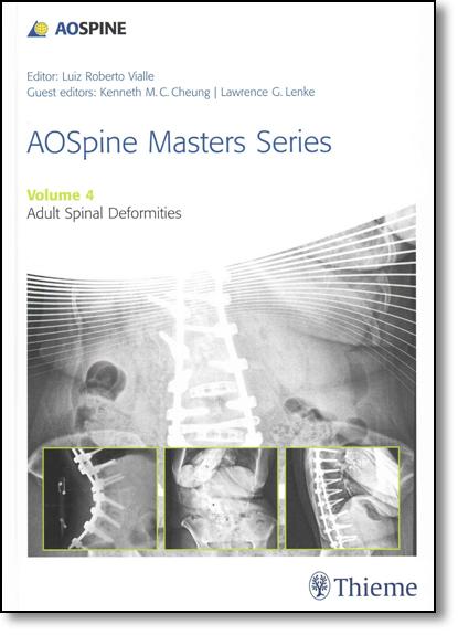 Aospine Masters Series: Adult Spinal Deformities - Vol.4, livro de Luiz Roberto Vialle