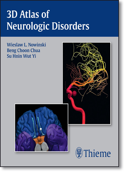 3d Atlas of Neurologic Disorders, livro de Wieslaw L. Nowinski