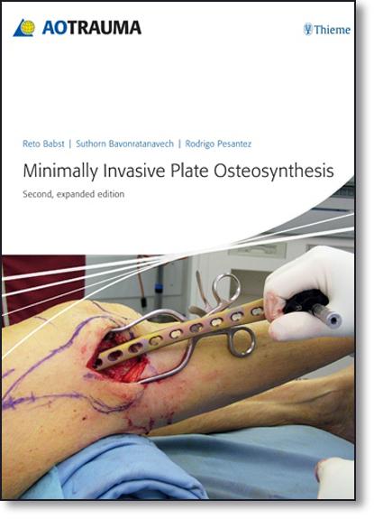 Minimally Invasive Plate Osteosynthesis ( Mipo), livro de Reto Babst