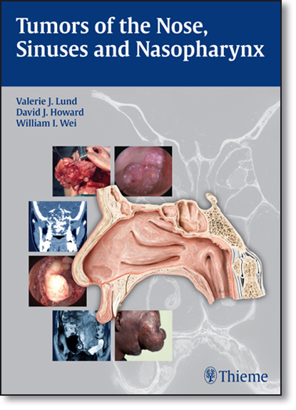 Tumors of the Nose, Sinuses and Nasopharynx, livro de Valerie J. Lund