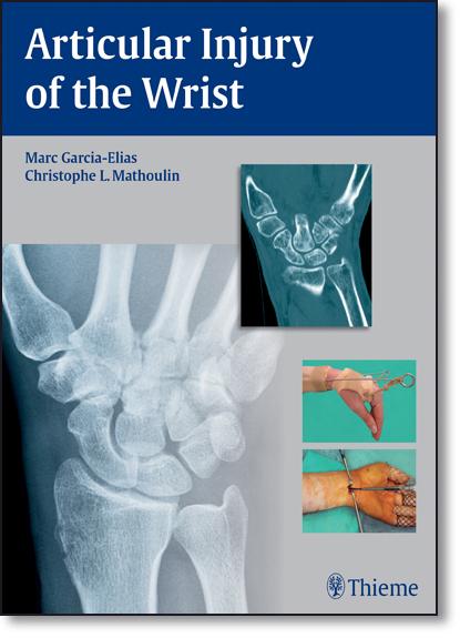 Articular Injury of the Wrist, livro de Marc Garcia-Elias