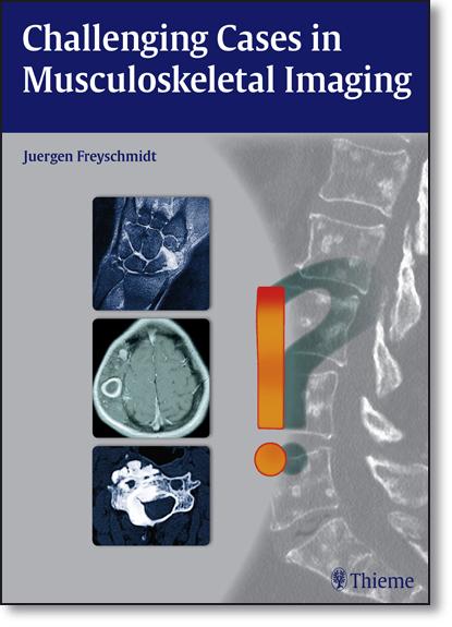 Challenging Cases in Musculoskeletal Imaging, livro de Jürgen Freyschmidt