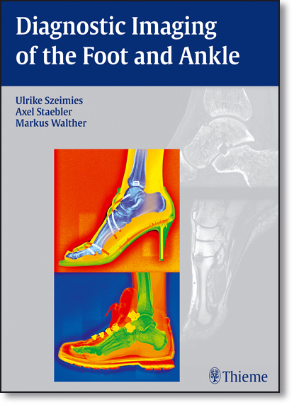 Diagnostic Imaging of the Foot and Ankle, livro de Ulrike Szeimies