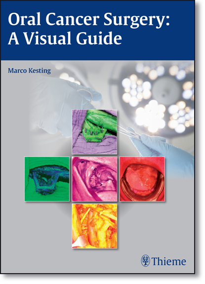 Oral Cancer Surgery: A Visual Guide, livro de Marco R. Kesting