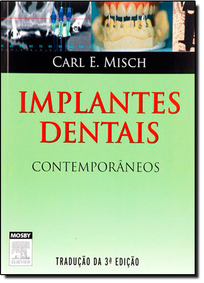 Implantes Dentais Contemporâneos, livro de Carl E Misch