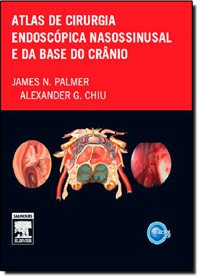 Atlas de Cirurgia Endoscópica Nasossinusal e da Base do Crânio, livro de James N. Palmer