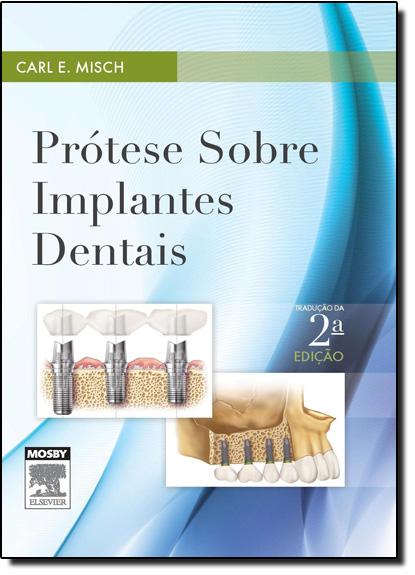 Prótese Sobre Implantes Dentais, livro de Carl E. Misch
