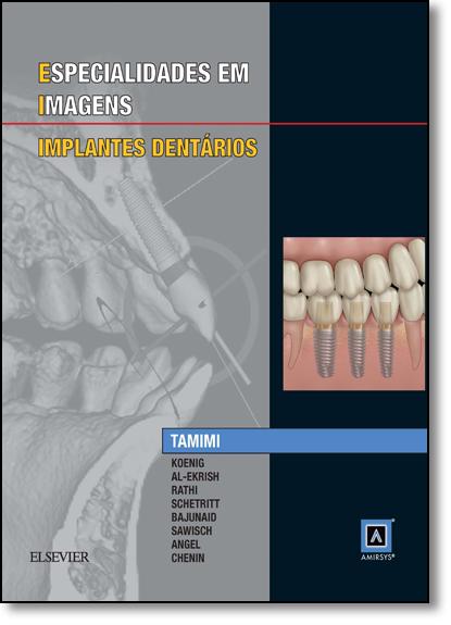 Especialidades em Imagens: Implantes Dentários, livro de Dania Faisal Tamimi