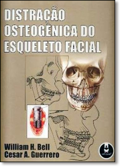 Distração Osteogenica do Esqueleto Facial, livro de William H. Bell