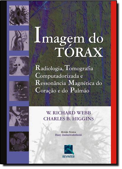 Imagem do Tórax: Radiologia, Tomografia Computadorizada e Ressonância Magnética do Coração e do Pulmão, livro de W. Richard Webb | Charles B. Higgins