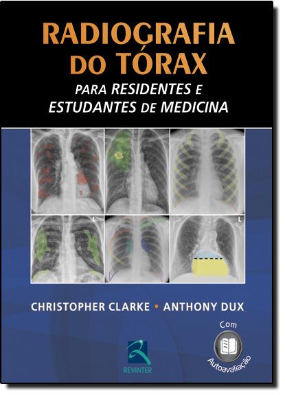 Radiografia do Tórax - Para Residentes e Estudantes de Medicina, livro de Christopher Clarke