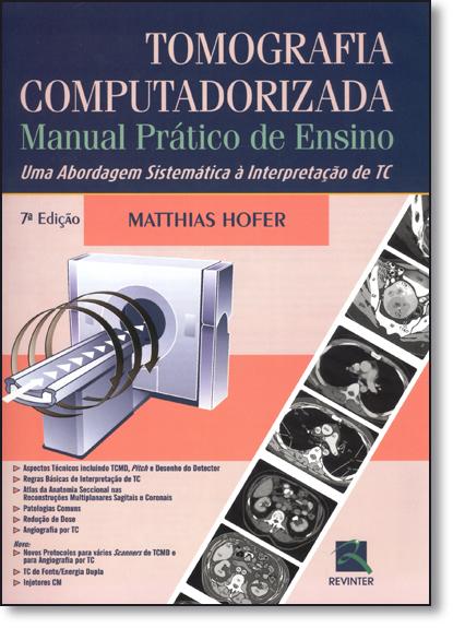 Tomografia Computadorizada: Manual Prático de Ensino - Uma Abordagem Sistemática À Interpretação de Tc, livro de Matthias Hofer