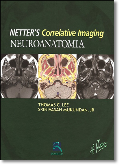 Neuroanatomia Netters - Correlative Imaging, livro de Thomas C. Lee