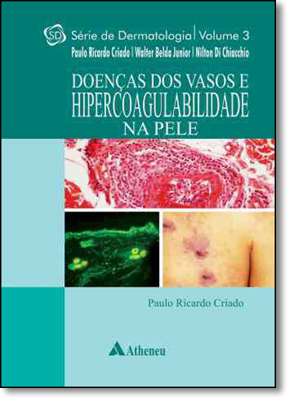 Doenças dos Vasos e Hipercoagulabilidade na Pele - Vol.3 - Série Dermatologia, livro de Paulo Ricardo Criado
