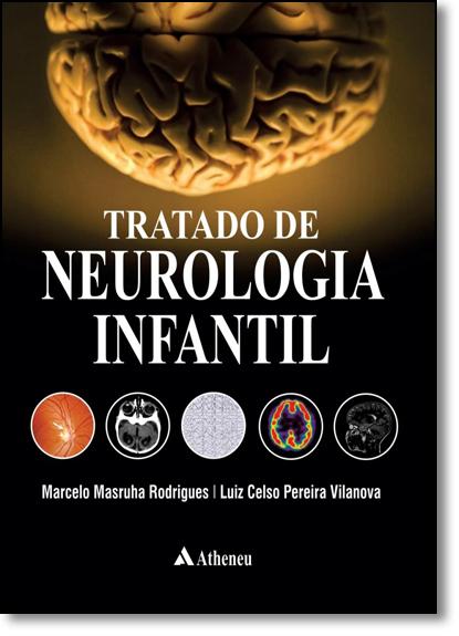 Tratado de Neurologia Infantil, livro de Marcelo Masruha Rodrigues