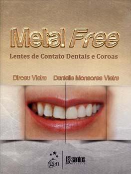 Metal free - Lentes de contato dentais e coroas, livro de Danielle Monsores Vieira, Dirceu Vieira