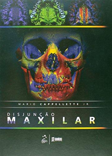 Disjunção Maxilar, livro de Mario Cappellette Jr.