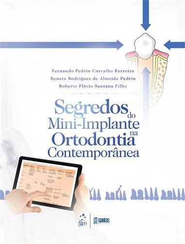 Segredos do Mini-implante na Ortodontia Contemporânea, livro de Renata Rodrigues de Almeida Pedrin