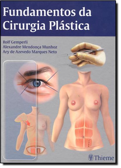 Fundamentos da Cirurgia Plástica, livro de Rolf Gemperli