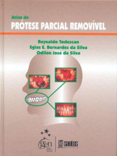 Atlas de Prótese Parcial Removível, livro de Reynaldo Todescan | Eglas E. Bernardes da Silva | Odilon José da Silva