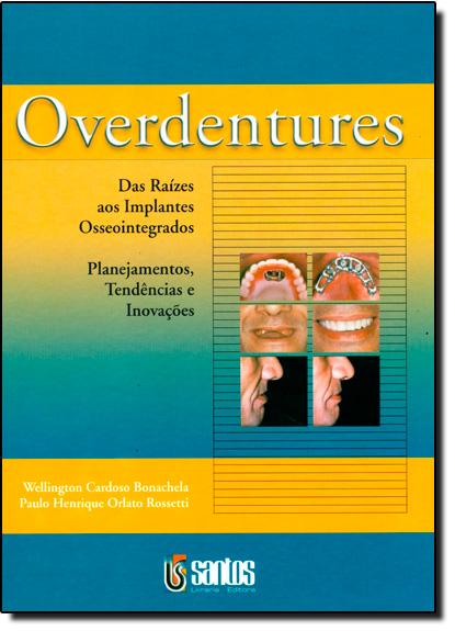 OVERDENTURES: DAS RAIZES AOS IMPLANTES OSSEOINTEGRADOS, livro de BONACHELA