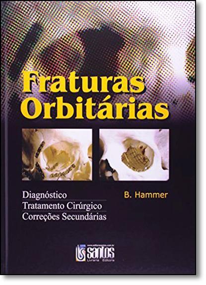 Fraturas Orbitarias: Diagnóstico, Tratamento Cirúrgico, Correções Secundárias, livro de B. Hammer
