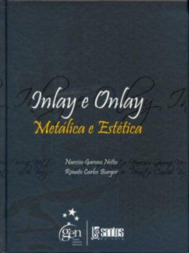 INLAY E ONLAY - METALICA E ESTETICA, livro de GARONE NETTO/BURGER