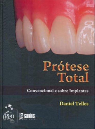 Prótese Total: Convencional e Sobre Implantes, livro de Daniel Telles