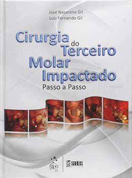 Cirurgia do terceiro molar impactado - Passo a passo, livro de José Nazareno Gil, Luiz Fernado Gil