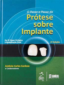 O passo a passo da prótese sobre implante - Da 2ª etapa cirúrgica à reabilitação final - 2ª edição, livro de Antônio Carlos Cardoso