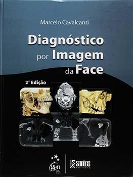 Diagnóstico por imagem da face - 2ª edição, livro de Marcelo Cavalcanti