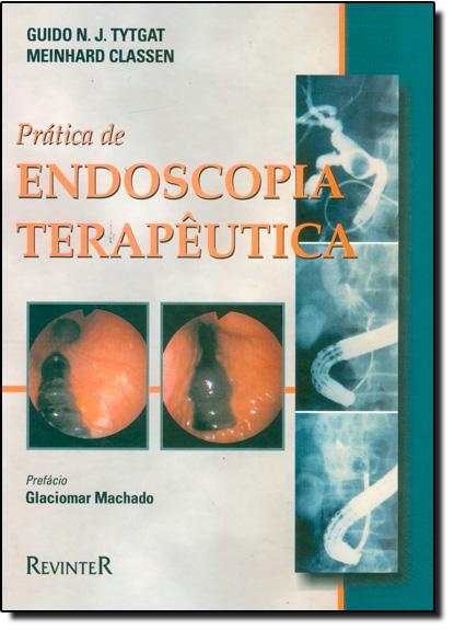 Prática de Endoscopia Terapêutica, livro de Guido N. J. Tytgat
