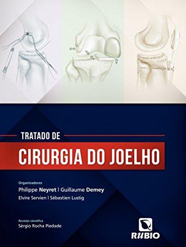 Tratado de Cirurgia do Joelho, livro de Philippe Neyret